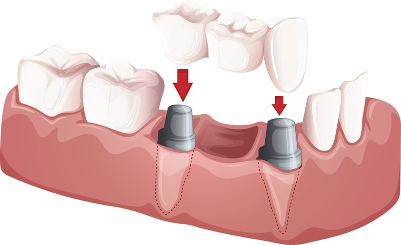 Dental Bridges Overview