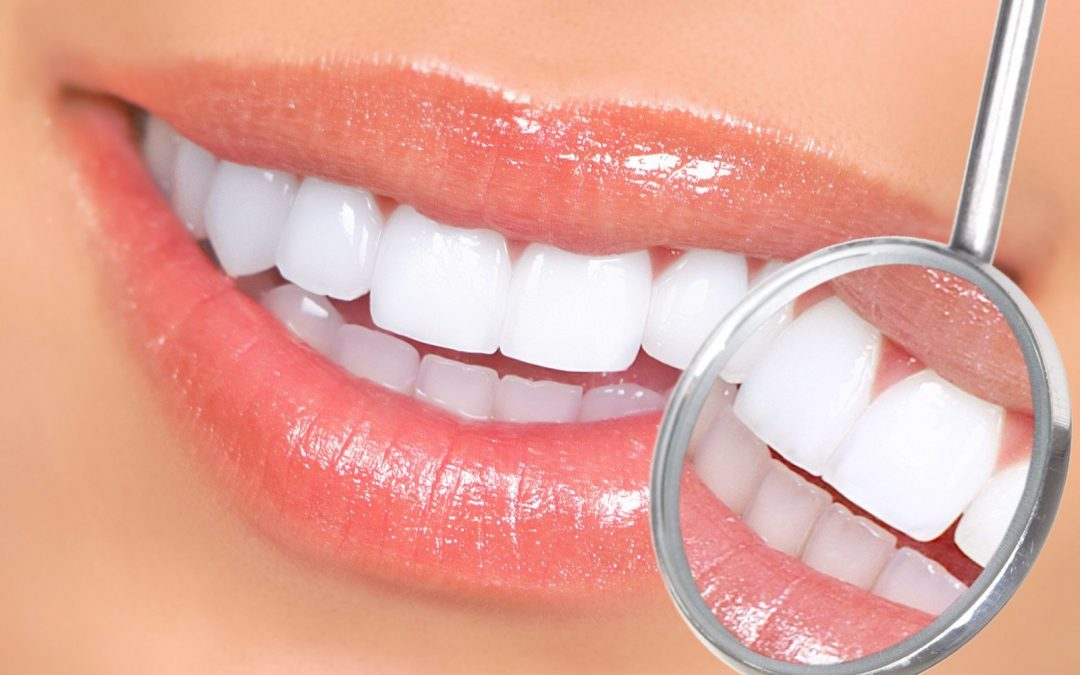 Teeth Whitening Overview