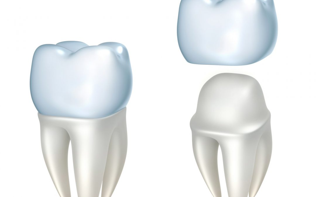 Benefits of Dental Crowns